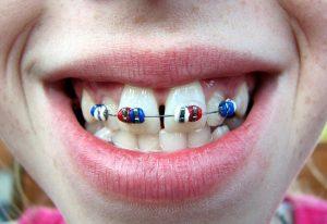Xin giới thiệu! Phương pháp niềng răng hô hàm trên mới nhất 1