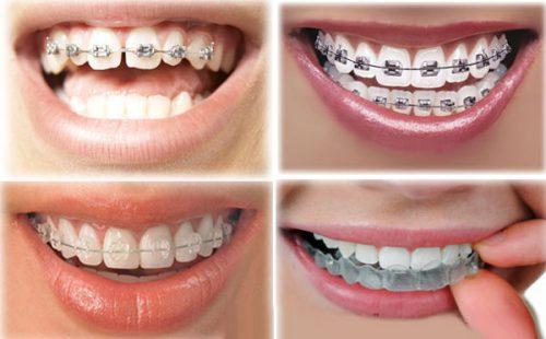 Niềng răng thưa 2