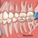 Răng khôn bao giờ mọc - Cách xử lý