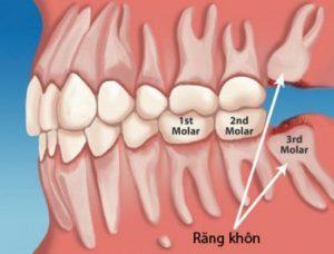Răng khôn bao giờ mọc - Cách xử lý 1