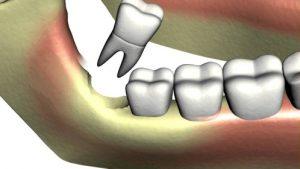 Răng khôn bao giờ mọc - Cách xử lý 3