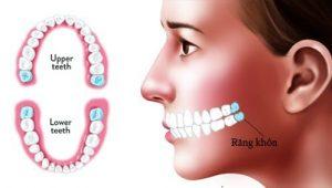 Tìm hiểu thông tin - Răng khôn có mấy cái