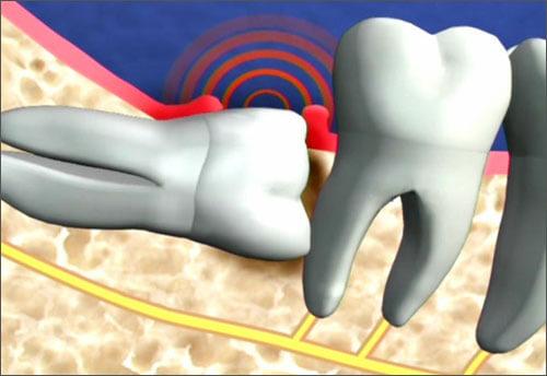 Răng khôn hàm trên mọc lệch phải làm gì? 1