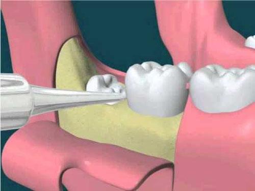 Răng khôn là răng số mấy? Mọc ở vị trí nào? 2