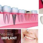Những sai lầm nên tránh khi chọn trung tâm cấy ghép implant 1
