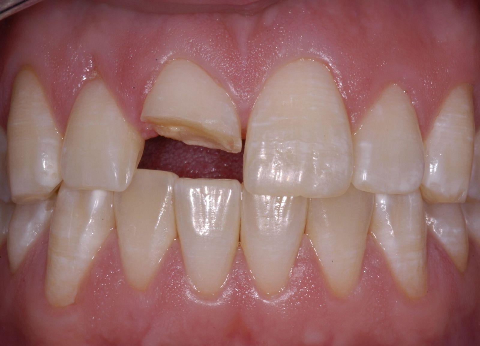Bọc răng sứ cho răng hàm đẹp an toàn 1