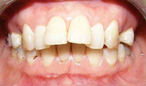 Bọc răng sứ cho răng hô nhanh chóng hiệu quả 1