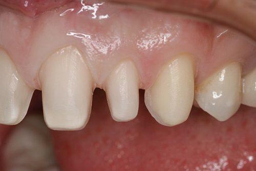 Mài răng bọc răng sứ có đau không? 1