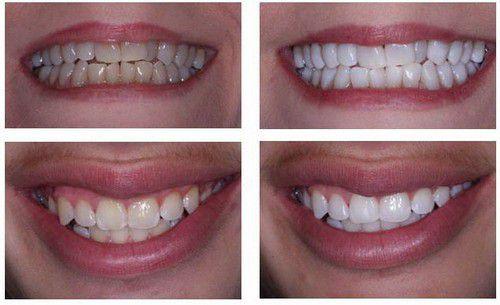 Phương pháp bọc răng sứ có tác hại gì không? 2