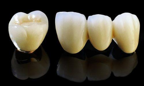 Bọc răng sứ thẩm mỹ giá bao nhiêu tiền hiện nay? 3