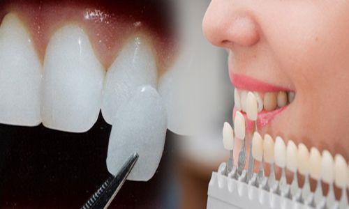 Có nên bọc răng sứ không? 1