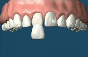 Răng đã lấy tủy có nên bọc răng sứ? 1