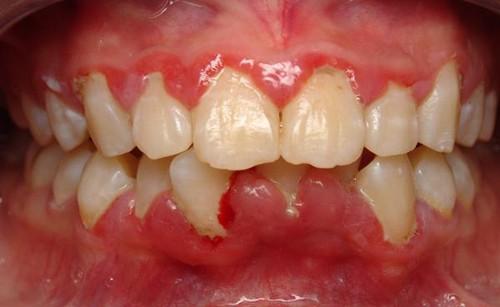 Bị viêm lợi chảy máu chân răng phải làm sao? 1