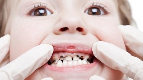 Bé bị sâu răng có nên hàn răng cho bé không? 1