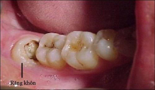 Nhổ răng khôn hàm dưới có nhanh lành không? 1