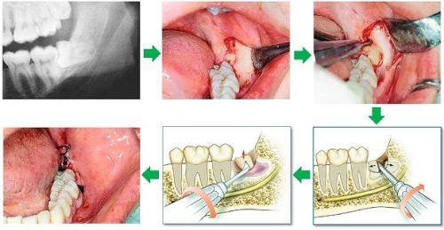 Nhổ răng khôn hàm dưới có nhanh lành không? 2