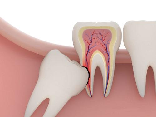 Nhổ răng số 8 có nguy hiểm không? 2