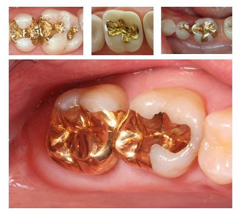 Trám răng sâu giúp ngăn ngừa nhiều biến chứng khôn lường1