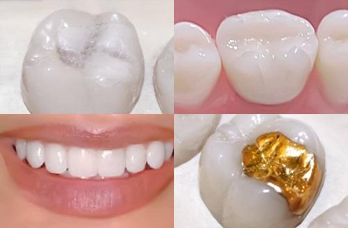 Trám răng là gì? Hiểu rõ hơn về dịch vụ trám răng tại nha khoa 2