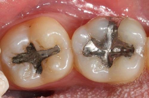 Trám răng mất bao nhiêu thời gian cho 1 quá trình thực hiện 2