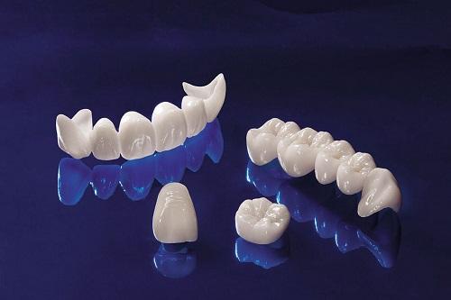Bọc răng sứ cercon có đắt không? Giá răng sứ ceron-1