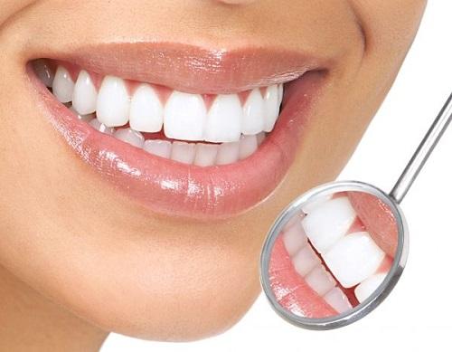 Bọc răng sứ cho răng cửa mọc lệch - Giải pháp thẩm mỹ nha khoa-4