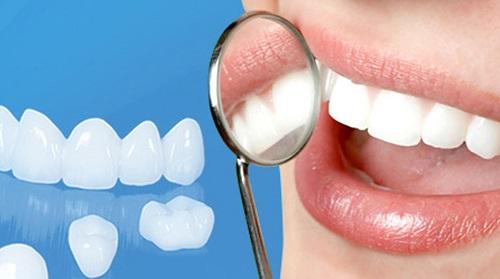 Bọc răng sứ có ảnh hưởng gì không? Tìm hiểu thông tin-1