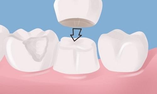 Bọc răng sứ không cần mài răng có hiệu quả không?-3