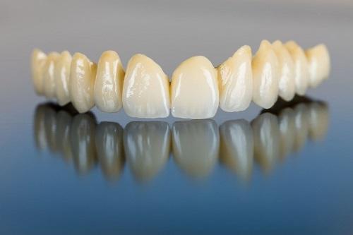 Bọc răng sứ kim loại thường có tốt không? Ưu điểm răng sứ kim loại-1