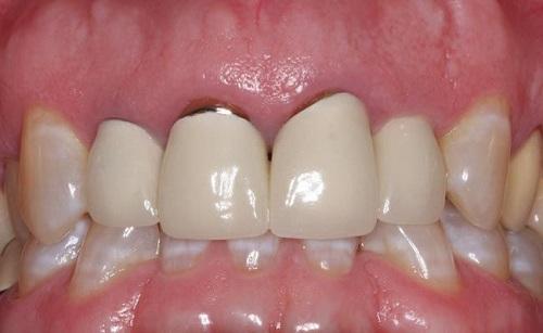 Bọc răng sứ kim loại thường có tốt không? Ưu điểm răng sứ kim loại-3