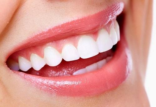 Bọc răng sứ titan có tốt không? Câu trả lời chính xác nhất-4
