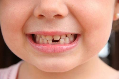 Có nên bọc răng sứ cho trẻ em không? Thông tin cần biết-1