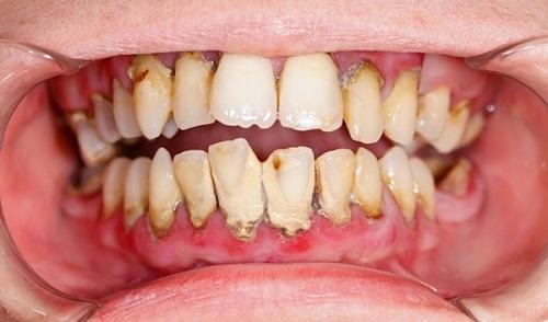Lấy cao răng bao nhiêu tiền? Có đắt không 1