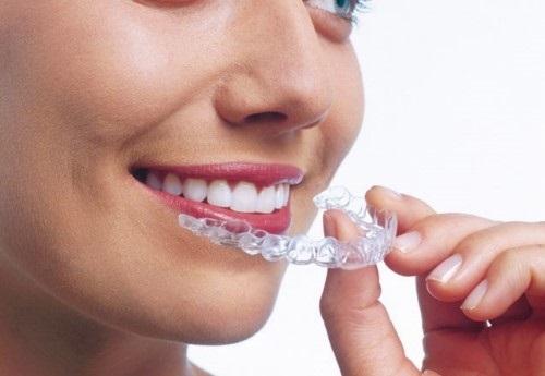 Niềng răng có hôn được không? Tham khảo ý kiến nha khoa-2