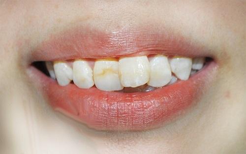 Niềng răng cửa bị mọc lệch cải thiện thẩm mỹ-1