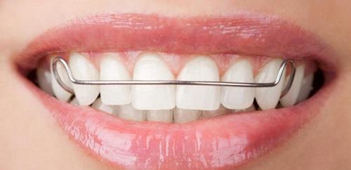 Niềng răng cửa bị mọc lệch cải thiện thẩm mỹ-2