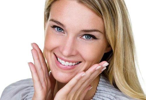 Niềng răng cửa bị mọc lệch cải thiện thẩm mỹ-4