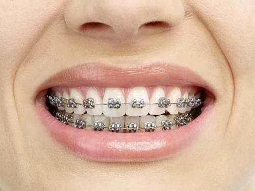 Niềng răng cửa giá bao nhiêu? Có khác niềng răng khác không-2