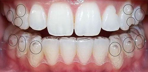 Niềng răng không mắc cài 3d clear aligner - Dịch vụ thẩm mỹ-1
