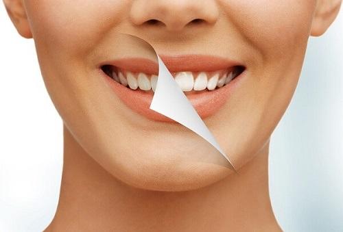 Tẩy trắng răng có được uống bia không? Tư vấn từ chuyên gia 1