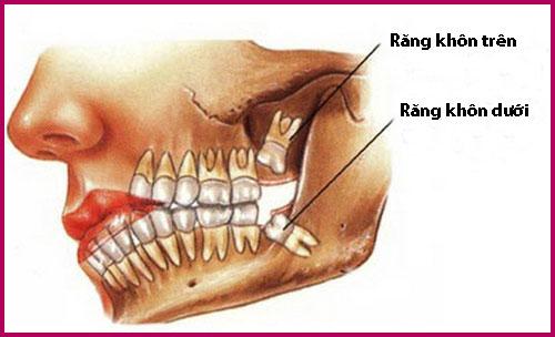 Nhổ răng khôn hàm dưới bao nhiêu tiền? Tham khảo ngay 1