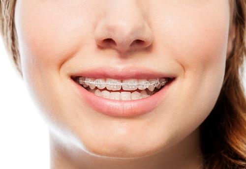 Niềng 4 răng cửa giá bao nhiêu? Chi tiết giá niềng răng-3