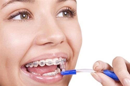 Lý giải vấn đề - Niềng răng có làm răng yếu đi không?-3
