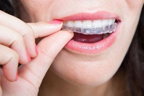 Niềng răng invisalign có đau không? Nên lưu ý gì trước khi thực hiện-3
