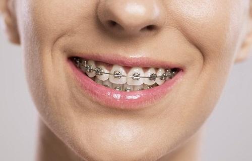 Niềng răng người lớn giá bao nhiêu? Gợi ý mức chi phí cho bạn-1