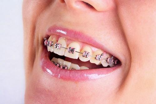 Các bước thực hiện niềng răng trả góp tphcm tại nha khoa-1