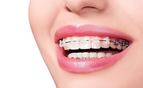Các bước thực hiện niềng răng trả góp tphcm tại nha khoa-3