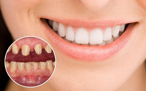Bọc răng chữa móm có được không? Nha khoa tư vấn-2