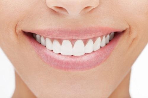 Bọc răng sứ bao lâu thì ăn được? Lưu ý sau khi bọc răng sứ-2