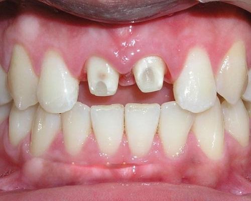 Giải đáp tình trạng - Bọc răng sứ có bị rớt ra không?-2